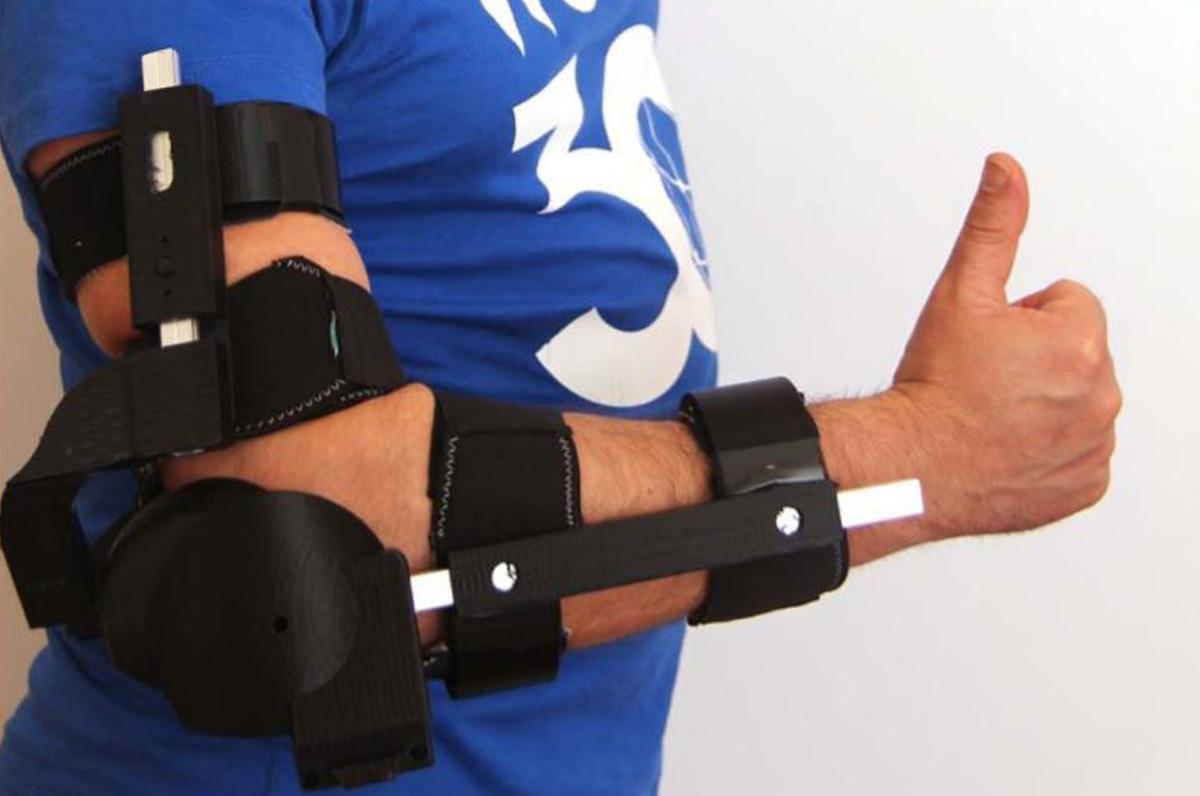 Braccio bionico al posto del gesso: l'invenzione di un tranese