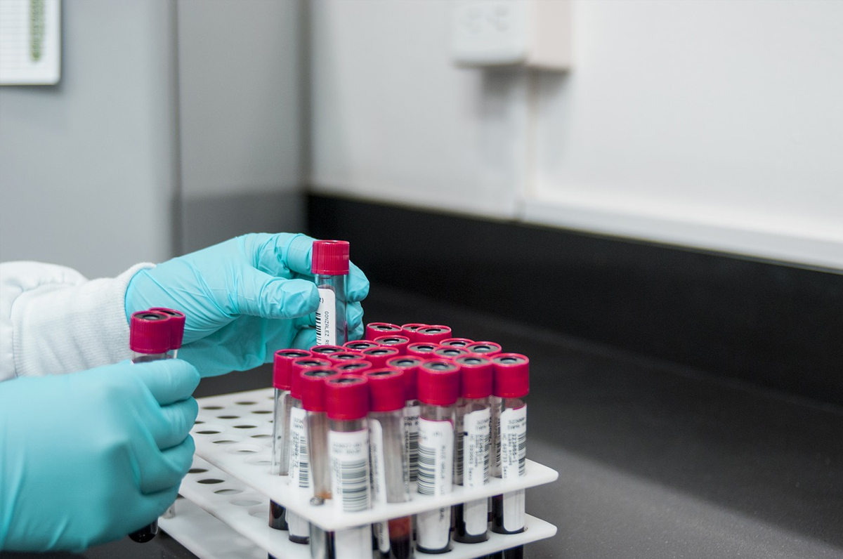 Coronavirus, in arrivo 2800 test rapidi in Puglia