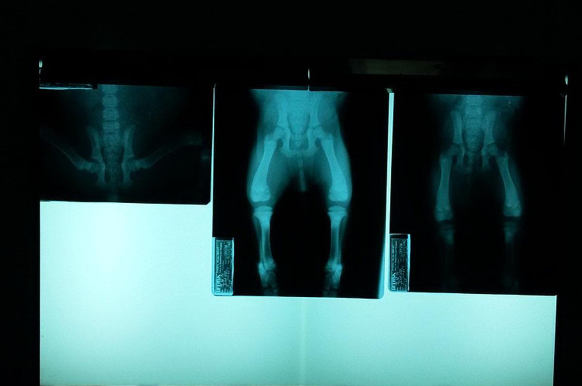Foggia, esami radiologici via web
