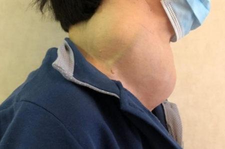 Bari, donna di 65anni salvata da tumore tiroide